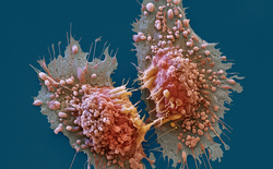 Sau tất cả, họ đã tìm ra cách ngăn tế bào ung thư di căn