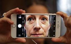 Chỉ cần camera smartphone để phát hiện và chẩn đoán ung thư da: Bước tiến công nghệ đột phá của IBM