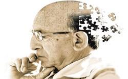 Loại thuốc đa năng vừa chống ung thư, vừa ngăn chặn bệnh mất trí