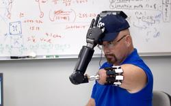 Người đàn ông với cánh tay máy điều khiển bằng trí não này chính là ví dụ về cyborg đời thực