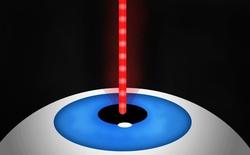 Tôi đã bắn laser vào mắt rồi sau đó có đôi mắt của Người Nhện như thế nào?