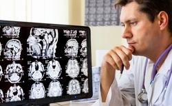 Thời buổi công nghệ, đến bác sĩ chẩn đoán hình ảnh cũng lo sợ mất việc?
