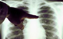 Phát hiện khối u tiềm ẩn trong cơ thể chỉ bằng cách sờ, bạn tin được không?