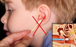 4 lỗi lầm thường mắc phải khi vệ sinh tai