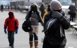 Mùa lạnh ngã luôn đau hơn bình thường, các bạn biết tại sao không?