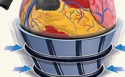 """Robot có khả năng """"ôm"""" lấy tim bị tổn thương nhằm ngăn ngừa truỵ tim"""