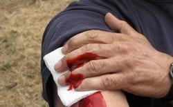 Tại sao bạn có thể mất tới 2 phần 3 lượng máu mà vẫn sống sót?
