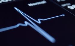 Các thuật toán AI đã có thể dự đoán nguy cơ đột quỵ với độ chính xác cao hơn cả bác sỹ