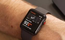 Apple khởi động dự án nghiên cứu sức khỏe tim mạch với Apple Watch