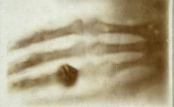 Tấm ảnh X-quang đầu tiên của nhân loại này đã làm vợ của nhà phát minh ra nó vô cùng hoảng hốt