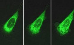 Những cỗ máy kích thước nano mới có thể tiêu diệt tế bào ung thư chỉ trong vài phút