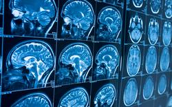 AI có thể phát hiện bệnh Alzheimer trước khi các triệu chứng xuất hiện 10 năm