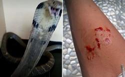 Bị rắn hổ mang cắn nhưng vẫn up ảnh lên MXH, cậu bé 14 tuổi chết thảm
