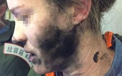 Tai nghe nổ trên máy bay, nữ hành khách bị bỏng nhẹ
