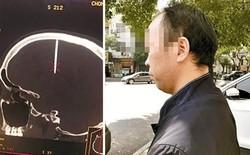 Nhập viện vì đau đầu không rõ lý do, người đàn ông Trung Quốc mới biết cây đinh dài 4,8cm đã cắm vào hộp sọ