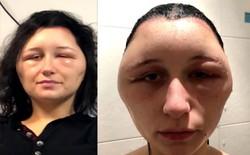 Cô gái Pháp ngạt thở suýt chết, đầu sưng to gấp đôi vì phớt lờ cảnh báo dị ứng thuốc nhuộm tóc