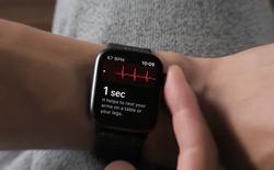 Vừa mới ra mắt, tính năng điện tâm đồ của Apple Watch đã cứu sống một mạng người