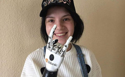 Câu chuyện cô gái trẻ với cánh tay robot và nỗi đau đằng sau khiến ai nghe được cũng phải rùng mình khiếp sợ