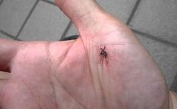 Đây là cách giảm ngứa cho vết muỗi đốt của bạn