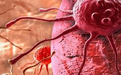 Trí tuệ nhân tạo có thể giúp các bác sĩ giải quyết vấn đề khó khăn nhất trong quá trình điều trị ung thư