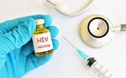 Thêm một vắc-xin HIV nữa tiến đến thử nghiệm giai đoạn 2b trên người, điều đó nghĩa là gì?