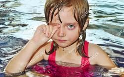 Dị ứng nước - Căn bệnh dị ứng kỳ lạ hiếm thấy trong lịch sử y học này là có thật