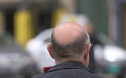 Nghiên cứu cho thấy ô nhiễm không khí có thể khiến bạn bị hói đầu
