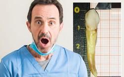 Người đàn ông đi vào Sách kỷ lục Guiness vì sở hữu chiếc răng dài gần 4cm