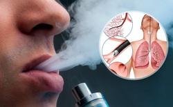Ruỗng phổi vì hút thuốc lá điện tử, thiếu niên 17 tuổi phải ghép cả hai lá phổi mới