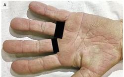 Dấu hiệu vân nhăn kỳ lạ trong lòng bàn tay thể hiện nguy cơ bệnh ung thư tiềm ẩn