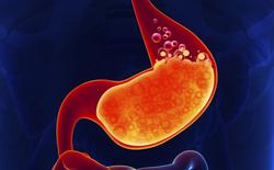 Nóng rát bụng: Cẩn thận với dấu hiệu sớm của ung thư dạ dày