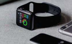 Bốn bước đơn giản để Apple Watch của bạn luôn được sạch sẽ