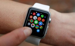 """Những việc cần làm ngay sau khi """"tậu"""" một chiếc Apple Watch"""