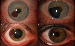 Tròng mắt cũng có thể bị ung thư và những gì xảy đến sau đó sẽ khiến bạn giật mình