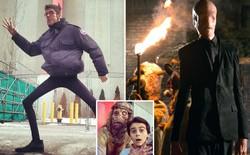 Không cần CGI, chứng bệnh lạ kỳ khiến chàng trai cao 1m98, nặng 55kg trở thành siêu sao phim kinh dị