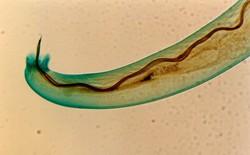 Mỹ cảnh báo ký sinh trùng chui vào não người, sau khi ăn rau sống bị ốc sên bò qua