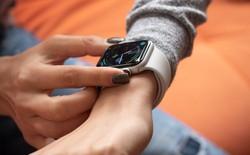 Có thể bạn chưa biết: doanh số trong năm đầu của Apple Watch là một sự thất bại