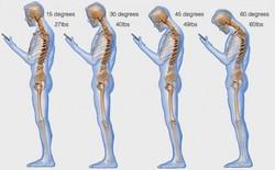 """4 cách loại bỏ """"bệnh công nghệ"""" ảnh hưởng rất xấu đến vai gáy của bạn"""