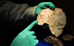 Căn bệnh bí ẩn chỉ được chẩn đoán sau khi bệnh nhân đã chết, bởi bác sĩ cần cắt não của họ