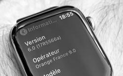 Đây là hình ảnh đầu rò rỉ đầu tiên về Apple Watch Series 5