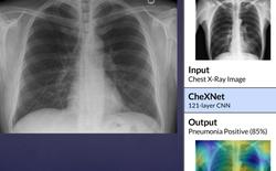Vingroup phát triển phần mềm chẩn đoán bệnh qua ảnh X quang