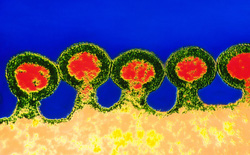 Một bệnh nhân ung thư nhiễm HIV ở Trung Quốc được điều trị bằng tế bào gốc chỉnh sửa gen