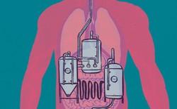 Đường ruột tự sinh ra rượu: Hội chứng kỳ lạ khiến nhiều người ăn cơm cũng say và mắc bệnh gan như người nghiện rượu