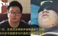 Sinh viên Trung Quốc bị bắt cóc ở Úc được trả tự do sau khi gia đình chuộc bằng 80 bitcoin