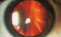Bệnh nhân với con mắt siêu hiếm trông như bánh pizza 8 miếng: Minh chứng cho thấy y học đã từng đáng sợ như thế nào