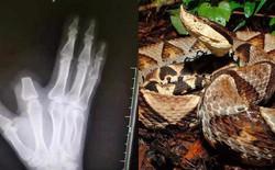 Bị rắn cắn, bác nông dân nhanh nhảu chặt phăng ngón tay nhưng đến bệnh viện thì bác sĩ bảo không cần