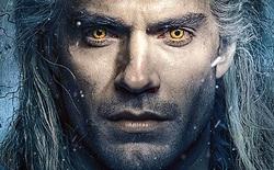 Henry Cavill bị xước mắt đến mức suýt mù vì đeo kính áp tròng quá lâu khi quay The Witcher