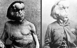 """Cuộc đời đau khổ và ngắn ngủi của """"Người voi"""": Sinh ra mang vẻ ngoài khác biệt với những khối u lớn bí ẩn không lời giải đến tận ngày nay"""
