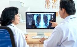 Triển khai giải pháp AI – VinDR trong chuẩn đoán hình ảnh y tế