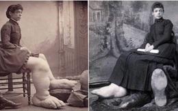 """Fanny Mills - """"Cô gái chân to Ohio"""", người được mệnh danh là có đôi bàn chân to nhất Trái Đất!"""